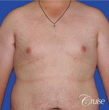 weight loss patient with gynecomastia - Before Image 1