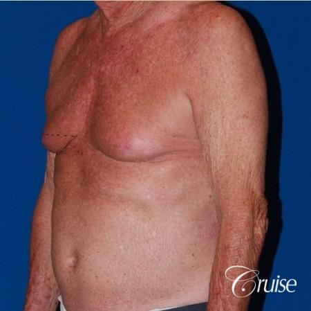 free nipple graft gynecomastia on old man - Before Image 2