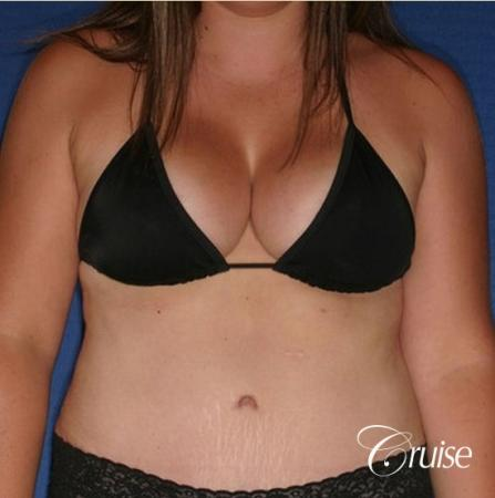 best results on young woman for breast lift anchor with saline augmentation -  After Image 5