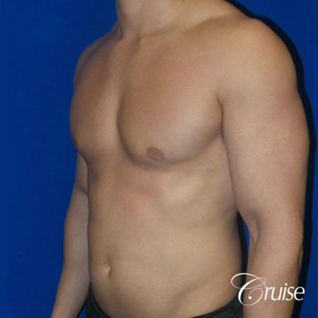 Best before and after gynecomastia pictures -  After Image 2
