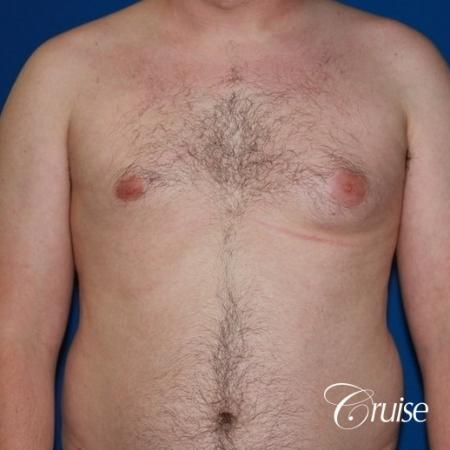 asymmetric gynecomastia moderate - Before Image 1