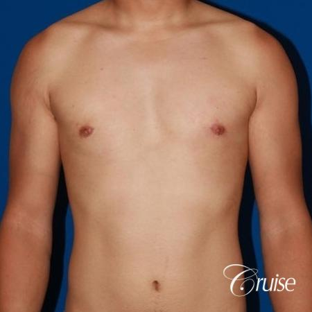 young athletic adult with puffy nipple -  After Image 1