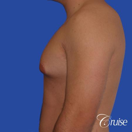 mild case of gynecomastia on adult - Before Image 2
