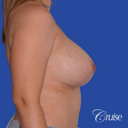 best revision Breast Lift with saline implants -  After Image 2