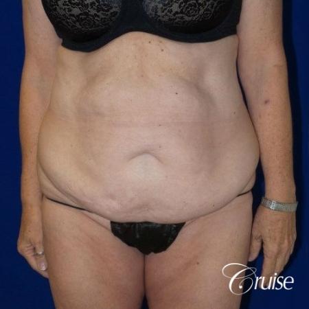 Circumferential Tummy Tuck w/BBL - Before