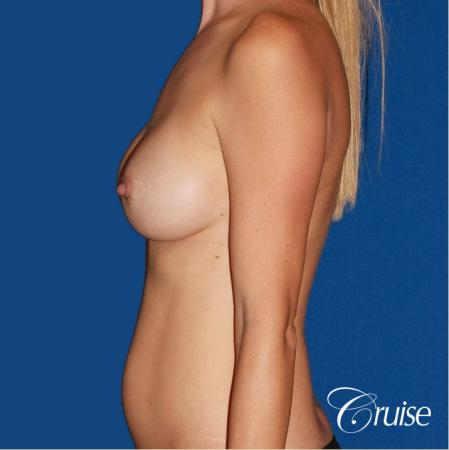 best breast revision for closer cleavage - Before Image 2