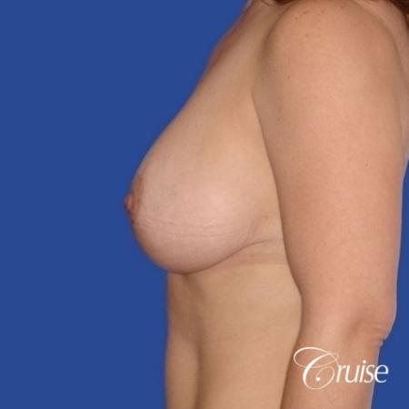pictures of 42 yr old with breast lift anchor revision -  After Image 2