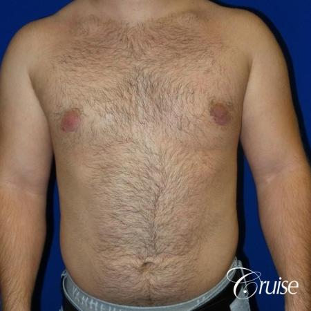 best gynecomastia results -  After Image 1