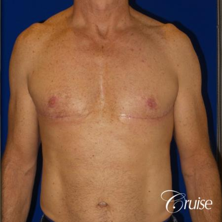 Top Gynecomastia surgeons - After Image