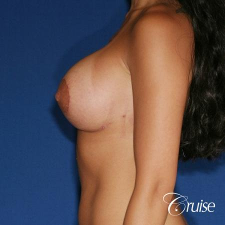 best breast lift anchor with silicone augmentation in Orange County -  After Image 2