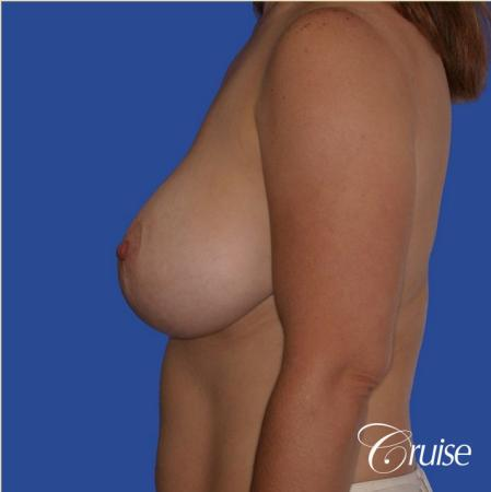 best revision to correct large breast - Before and After Image 2