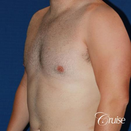 moderate chest gynecomastia and liposuction flanks -  After Image 2