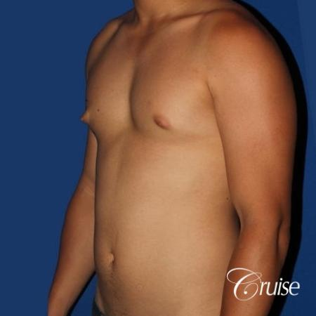 young athletic adult with puffy nipple - Before Image 2