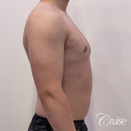 Gynecomastia: Patient 123 - After 5