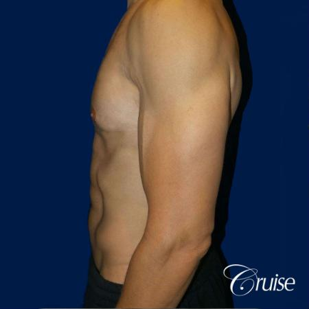 Moderate Gynecomastia -Pedicle - After Image 2