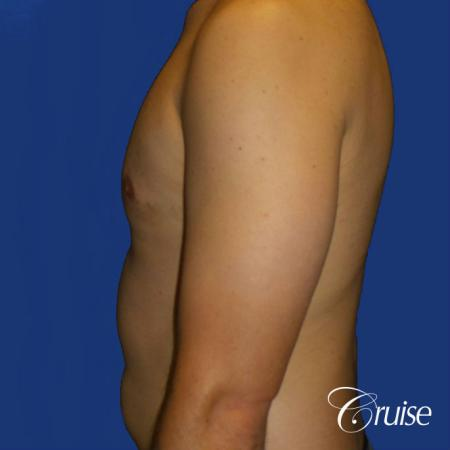 gyne before and afters orange county ca -  After Image 3