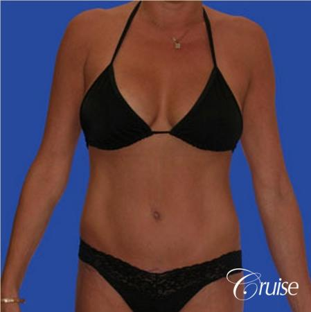 mommy makeover with best breast lift anchor with saline implants -  After Image 4