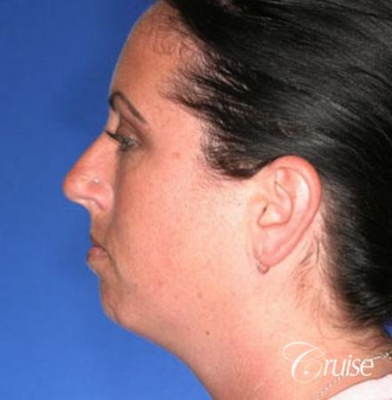 before and after photos of female chin implant - Before Image 2