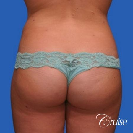 best liposuction results on abdomen, flanks, thighs -  After Image 2