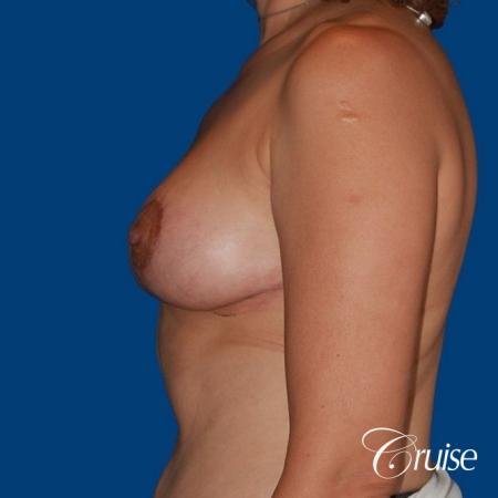 best breast reduction no implants -  After Image 2