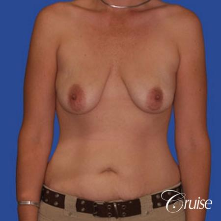 best scar for mommy make over breast lift tummy tuck - Before Image 1