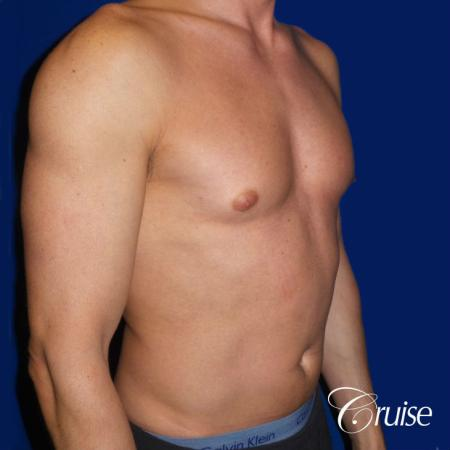 Mild Gynecomastia -Puffy Nipple -Areola Incision - Before Image 2