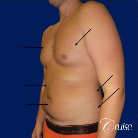 Best  before and after lipo photos of guys - Before Image 2