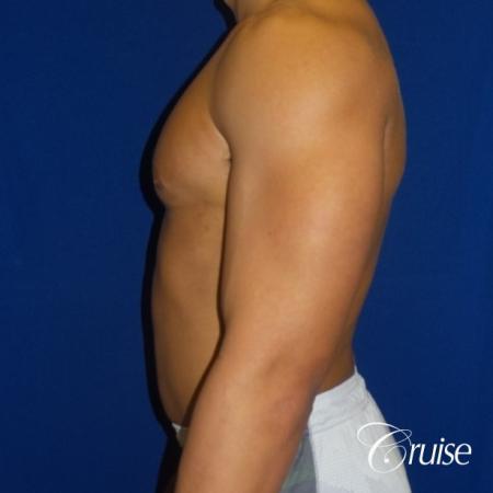 bodybuilder with gynecomastia -  After 3