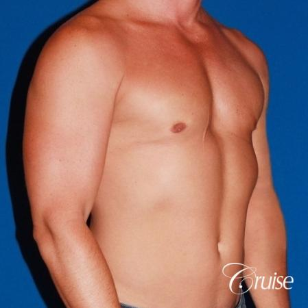 body builder with Gynecomastia puffy nipple -  After Image 4