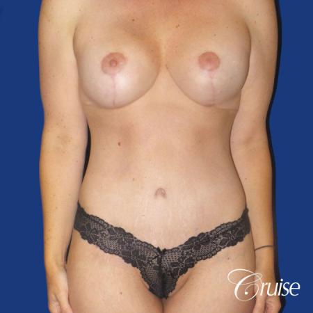 Circumferential Tummy Tuck, Breast Lift Anchor W/ Silicone - After Image 1