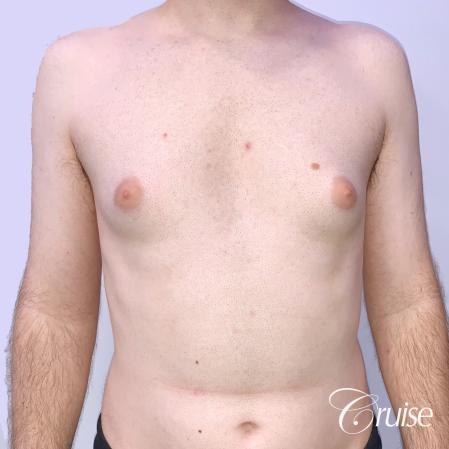 Gynecomastia: Patient 128 - Before 1