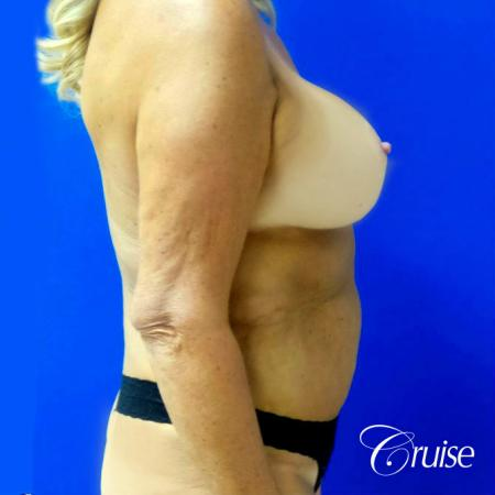 Breast Lift Anchor W/ Silicone Implants On Mature Woman - After Image 3