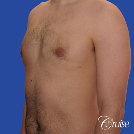 20 year old with moderate gynecomastia -  After Image 3