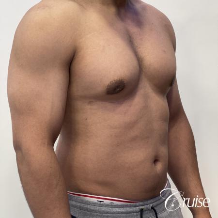 gynecomastia surgery -  After 5