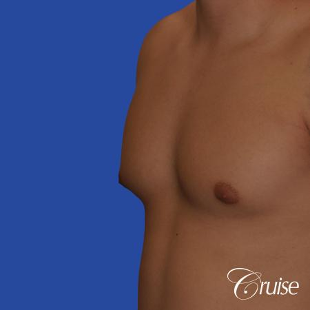 mild gynecomastia with puffy nipple and areola incision - Before Image 2