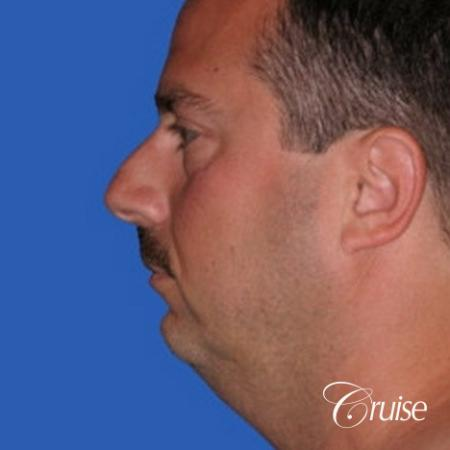 terino square jaw implant after best chin augmentation - Before Image 2