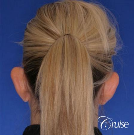 best otoplasty ear surgery by plastic surgeon in Newport Beach - Before and After Image 3