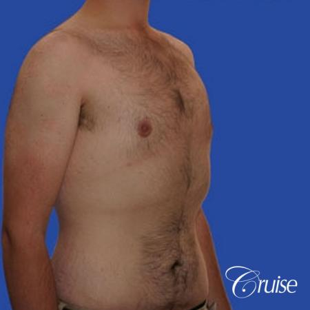 weight loss patient with gynecomastia -  After Image 3