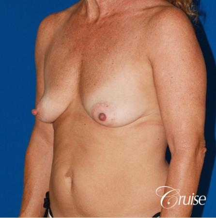 best high profile silicone breast lift 425cc - Before Image 3