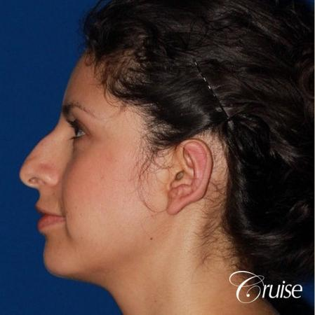 best otoplasty with natural appearance on female - After Image 2