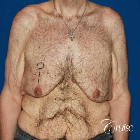 severe weight loss gynecomastia upper body lift - Before Image 1
