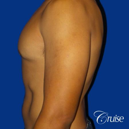 Mild Gynecomastia - Standard Areola Incision - After Image 3