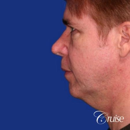 male with best scar for chin implant - Before Image 2