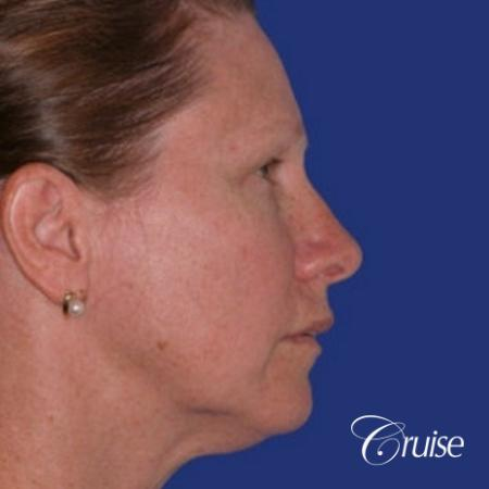 52 year old with chin augmentation and facelift - Before Image 3