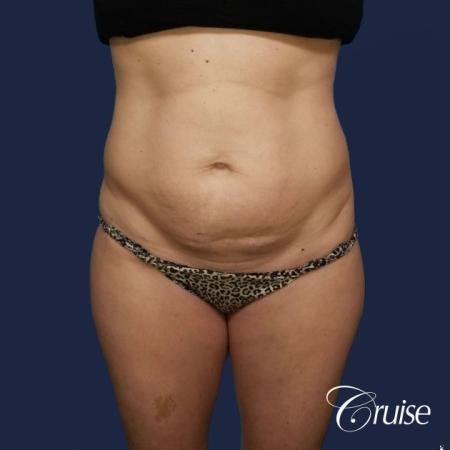 Standard Tummy Tuck - Before Image