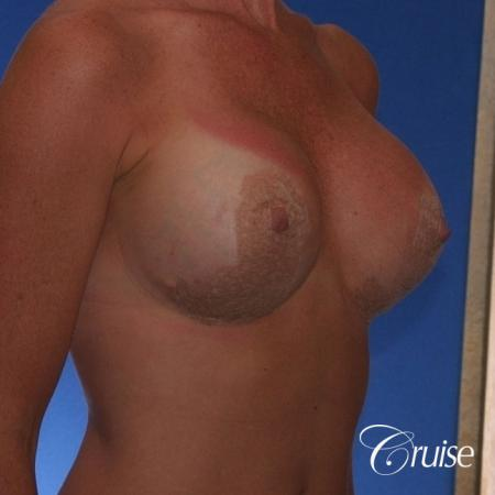 Best breast revision for low implants -  After Image 3