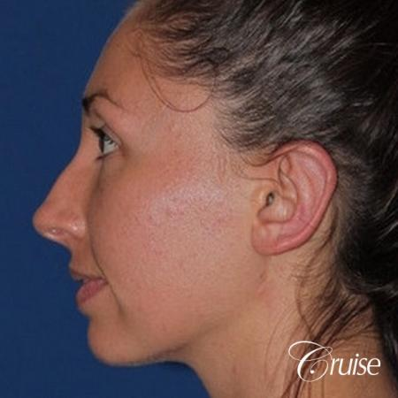 best adult otoplasty on women -  After Image 3