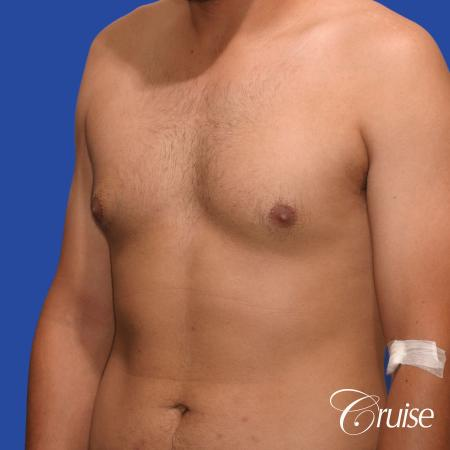 mild gynecomastia standard PA areola incision - Before Image 3