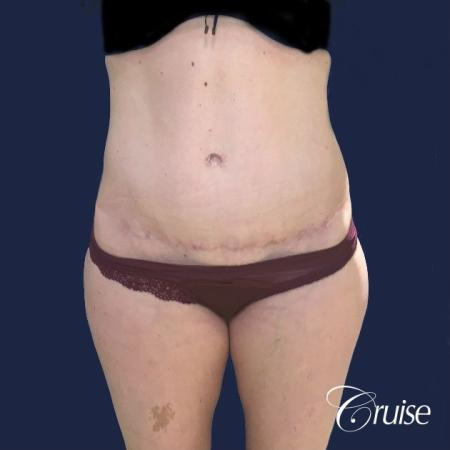 Standard Tummy Tuck - After Image