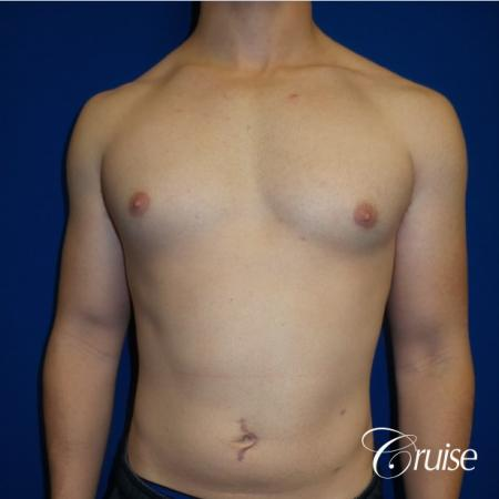 Adult gynecomastia pictures - Before Image 1